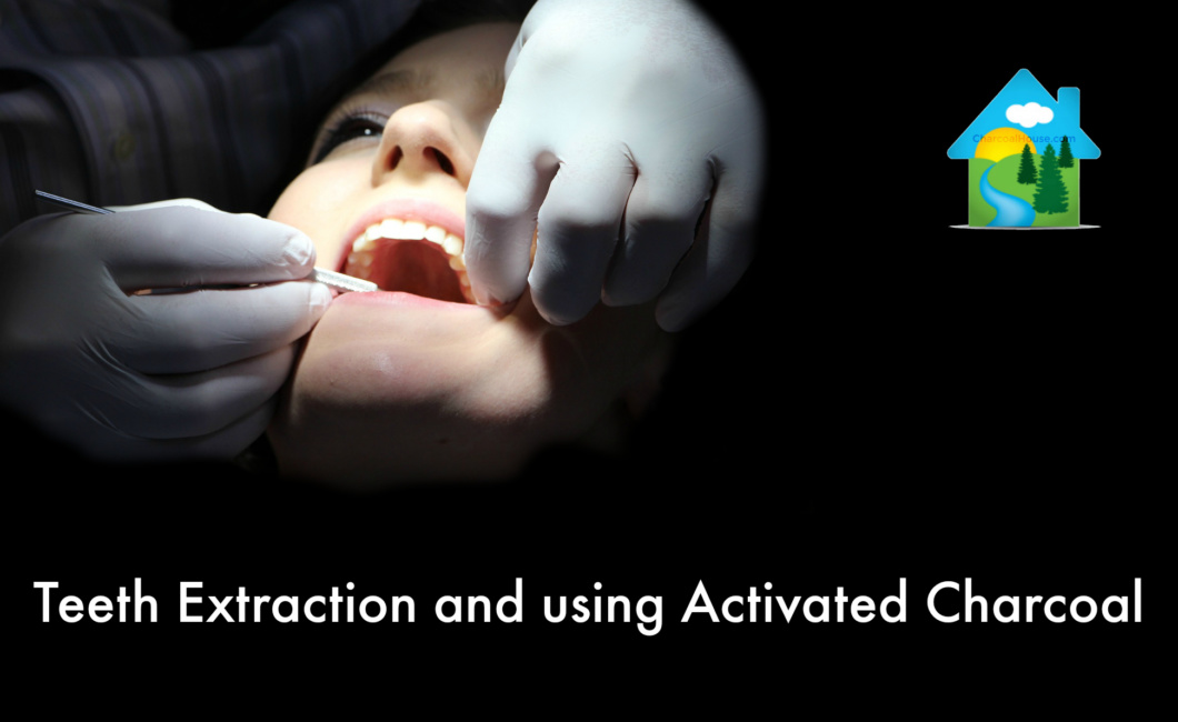 Blog post Teeth Extraction Using Activated Charcoal 1060x650 - Teeth Extraction and Using Activated Charcoal