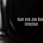 gum and jaw bone infection header 150x150 - Charcoal for Gum and Jaw Bone Infection