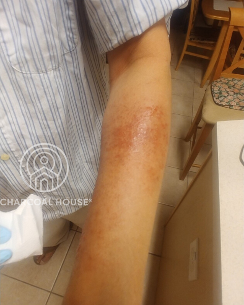 4282020 1am - MD Uses Activated Charcoal For A Nasty Rash